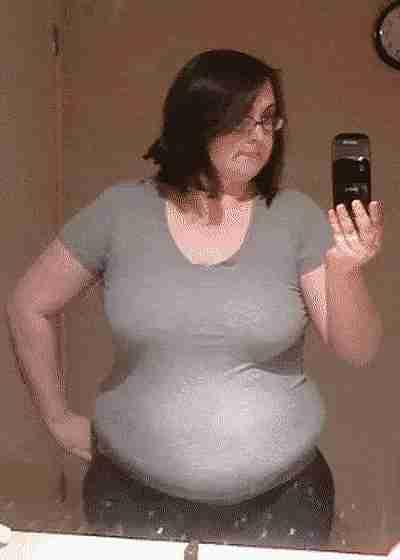 Antes y después de una pérdida de peso