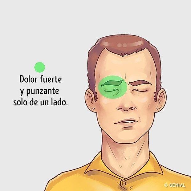 Dolor sobre cejas y pómulos