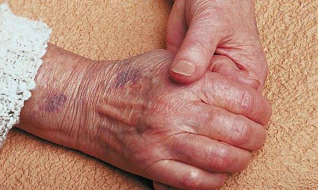 manchas negras de sangre en la piel