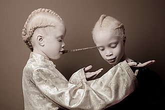 niñas negras albinas